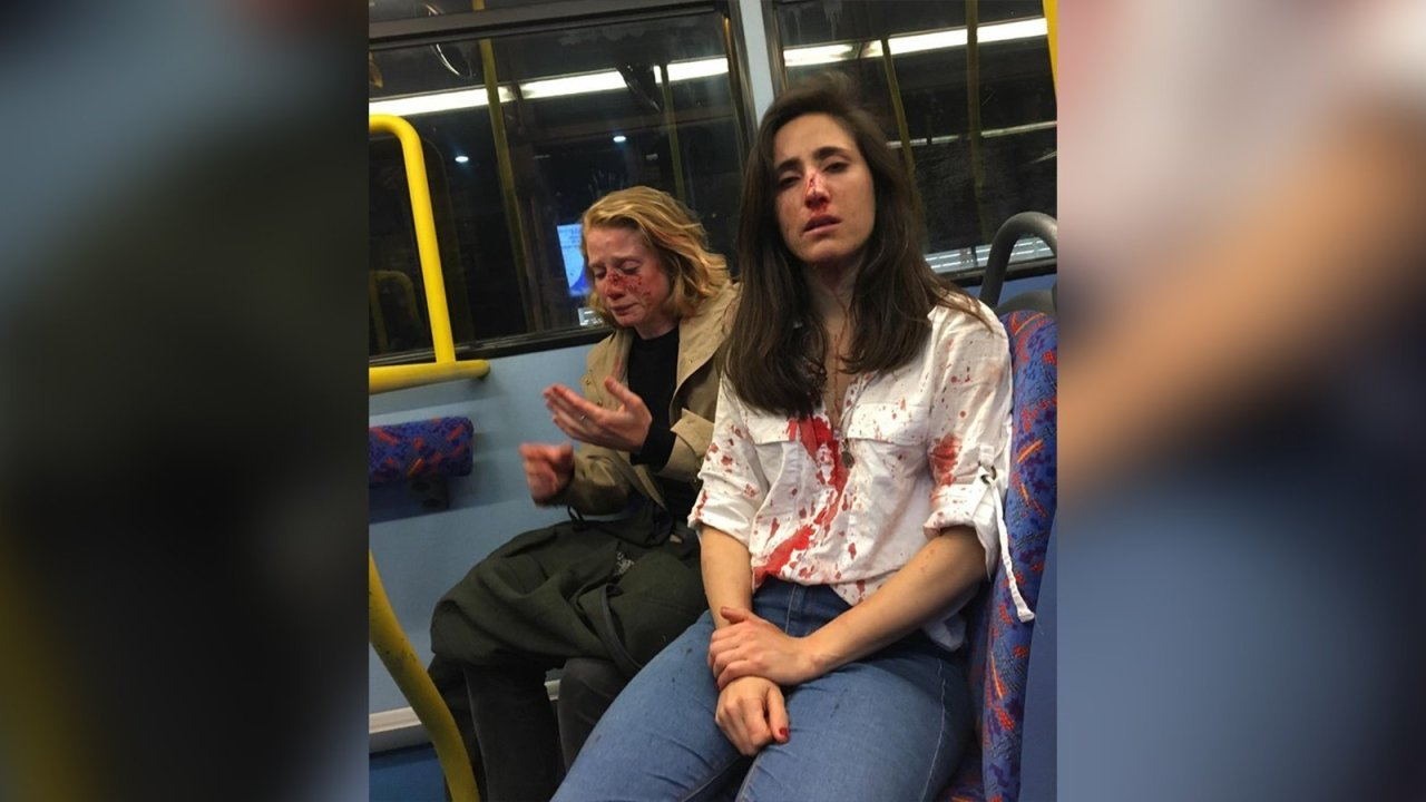 Lesbian Couple Viciously Beaten In Homophobic Attack On Bus Fox8 Com
